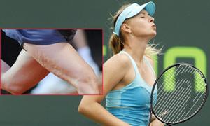 'Búp bê' Sharapova lộ chân xấu