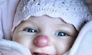 Bé gái có mũi cà chua