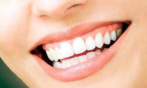 Răng sứ - giải pháp cho hàm răng khỏe đẹp