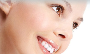 Cách tẩy trắng răng an toàn