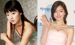 Hong Soo Ah bị nghi là mỹ nhân dao kéo