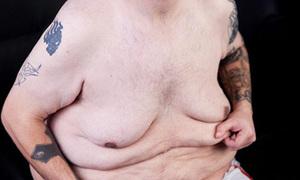 Khổ sở vì cả đống da thừa sau khi giảm cân