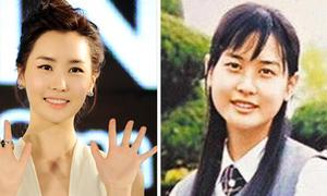 Lee Da Hae thừa nhận phẫu thuật thẩm mỹ