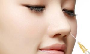 Bí quyết tạo dáng mũi đẹp tự nhiên