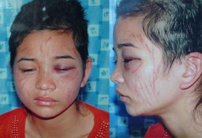 Tra tấn vợ dã man vì cuộc điện thoại
