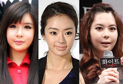 8 mỹ nữ Hàn bị chê vì mặt cứng đờ