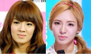 7 mỹ nhân Hàn bị nghi gọt mặt
