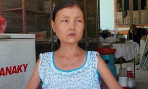 Cô gái gầy gò ăn hơn 20 lon gạo, uống 15 lít nước một ngày