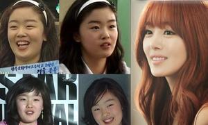 Dàn nữ Idol xứ Hàn trước và sau khi dao kéo