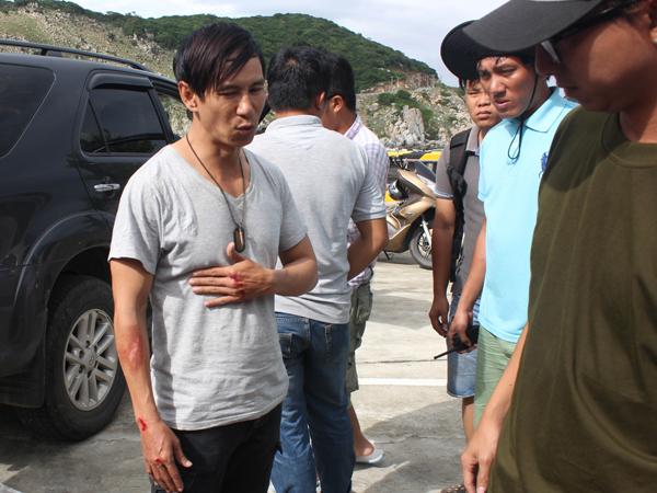 ly-hai-bi-tai-nan-khi-dang-dong-phim-4