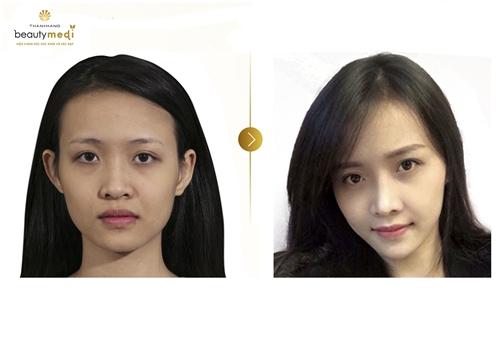 hoan-thien-ve-dep-khuon-mat-nho-phun-theu-chun-han-1