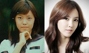 Loạt sao trẻ Hàn công khai thừa nhận dao kéo