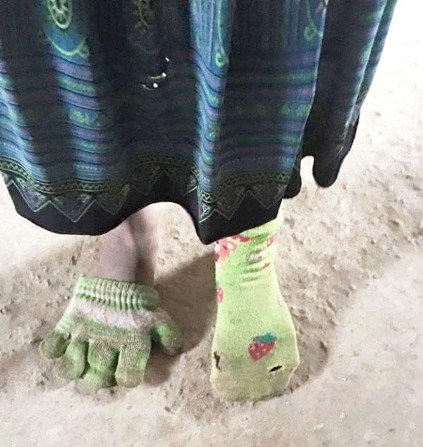 Bức ảnh chụp bé gái ở vùng cao Sơn La một chân đeo chiếc tất đã rách, một chân xỏ bao tay giữa trời đông rét buốt, khiến nhiều người cảm thấy xót xa.  Mới đây, trên khắp các diễn đàn và mạng xã hội, mọi người đang truyền tay nhau bức ảnh chụp bé gái mầm non một chân mang tất, một chân xỏ bao tay của cô giáo Tòng Hằng.  Trong ảnh, bé gái một chân đang đeo chiếc tất cũ kỹ và có nhiều vết rách, chân kia xỏ chiếc bao tay đã lấm lem màu đất, chiếc bao tay nhỏ nên em chỉ xỏ vừa 1 nửa bàn chân, nửa còn lại đã bị tím tái vì cái lạnh cắt da cắt thịt của vùng cao. Bức ảnh bé gái 1 chân đi tất rách, 1 chân xỏ chiếc găng tay khiến ai cũng chạnh lòng - Ảnh 1. Bức ảnh phản ánh sự nghèo đói, thiếu thốn của rất nhiều những em bé dân tộc vùng cao.  Được biết, cô bé trong bức ảnh có tên là Huyền, học sinh  Trường mầm non Hoa Ban 2, điểm trường Huối Lè, xã Mường Lạn, huyện Sốp Cộp, TP Sơn La.  Cô giáo Tòng Hằng  chủ nhân của bức ảnh cho biết trên báo Trí Thức Trẻ: Em bé trong ảnh tên là Huyền, người Khơ Mú, là học sinh của lớp mình. Dạo này trời lạnh quá, nhìn thấy em đi tất như vậy mình thương quá không biết làm sao.  Lớp học của mình cách trung tâm khoảng 7 km, lớp có 36 em học sinh. Bình thường, các em ở đây còn chẳng có giầy đi, nhà nào khá hơn thì có dép tổ ong, còn lại toàn đi chân đất thôi. Đợt này rét về nên các em phải làm vậy cho ấm hơn đó. Thời tiết trên này lạnh lắm, nếu nói là có đủ ấm không chắc là không thể đủ được, lớp học lại không đảm bảo nữa