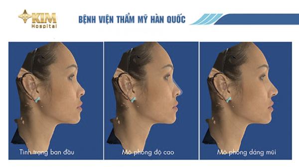 Kết quả phân tích 3D giúp mô phỏng và cho thấy khuôn mặt của bạn trước và sau khi nâng mũi.