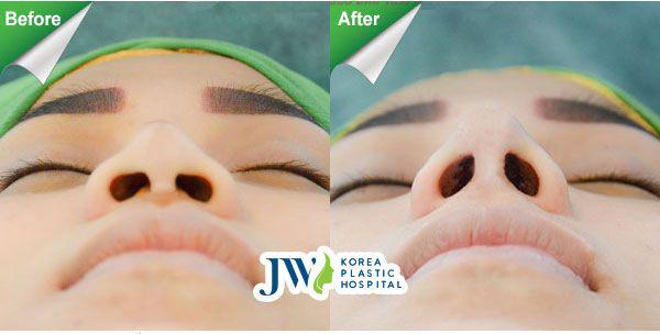 Hình ảnh nâng cao mũi bằng phương pháp S line Demoderm ứng dụng kỹ thuật tiền mê mới tại Viện Thẩm mỹ Hàn Quốc JW. Sau phẫu thuật, mũi cao thon tự nhiên, đầu mũi dài kín, lỗ mũi hình hạt chanh đúng chuẩn.