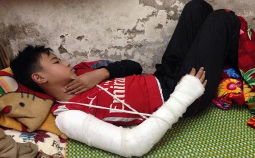 Học trò Lân Anh bị chấn thương tay phải nghi bị thầy giáo đánh tại trường. Ảnh: Lê Hoàng.