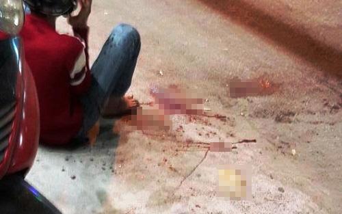 Nam thanh niên bị chém đứt lìa bàn tay chờ được đưa đi cấp cứu. Ảnh: Thành Ngô.
