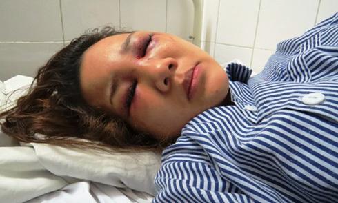 Thiếu úy công an đánh bạn gái nhập viện vì bị từ chối yêu