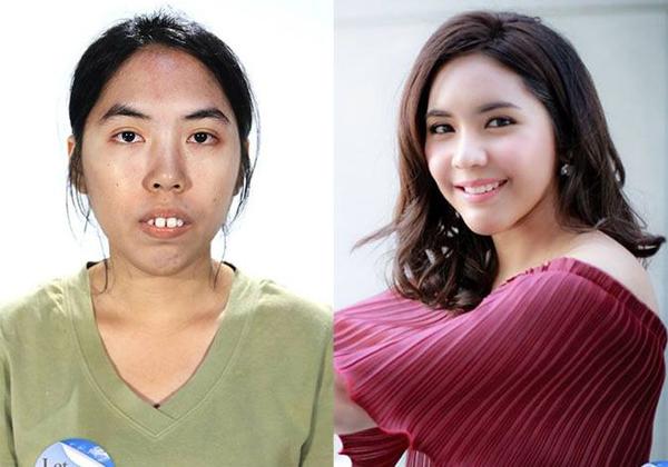 """Wangtowan """"Lin"""" Panuprateep trước và sau khi dao kéo. Ảnh: Asian Town"""