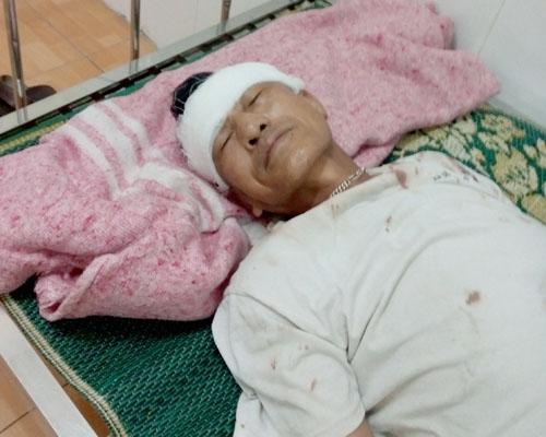 Ông Đố nhập viện sau khi bị đánh.