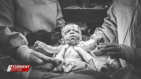 Khoảnh khắc thiêng liêng khi Sarah bế con từ trong bụng mình ra. Ảnh: Breathe Birth Photography
