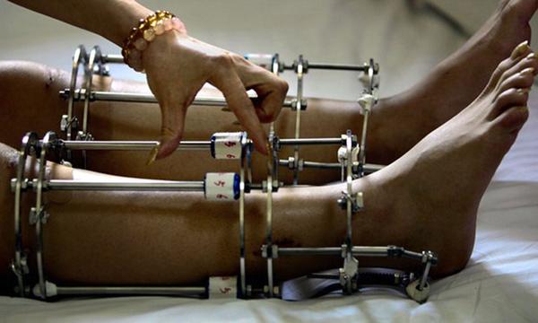 Bất chấp rủi ro và đau đớn, nhiều nam nữ Ấn Độ tìm đến phẫu thuật kéo chân để cải thiện ngoại hình. Ảnh: AP