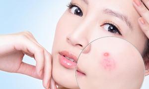 Nguyên nhân gây ra các loại sẹo thường thấy