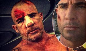 Tài tử Dominic bị thương nặng khi quay phim 'Vượt ngục'