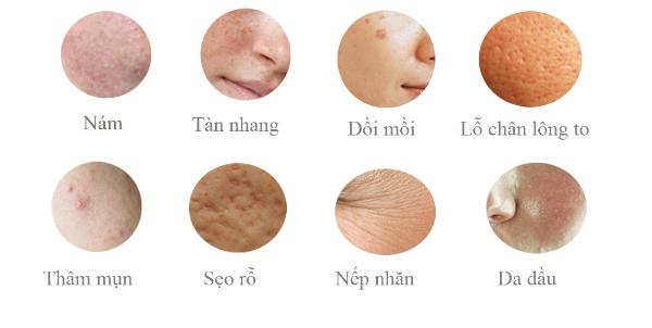 tri-nam-tan-nhang-cho-phu-nu-u40-2