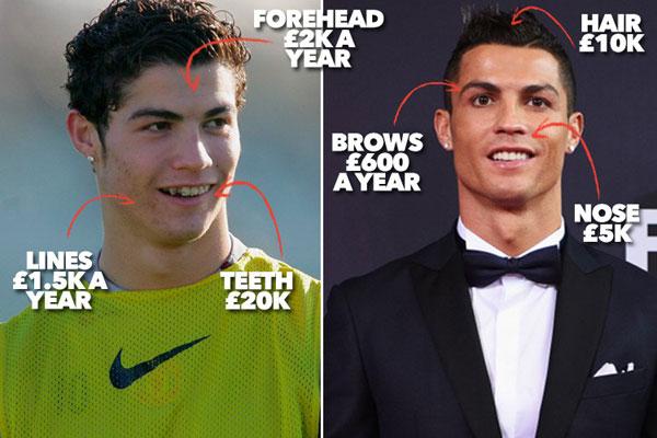 Hành trình lột xác của C. Ronaldo khi mới tới MU và hiện tại.