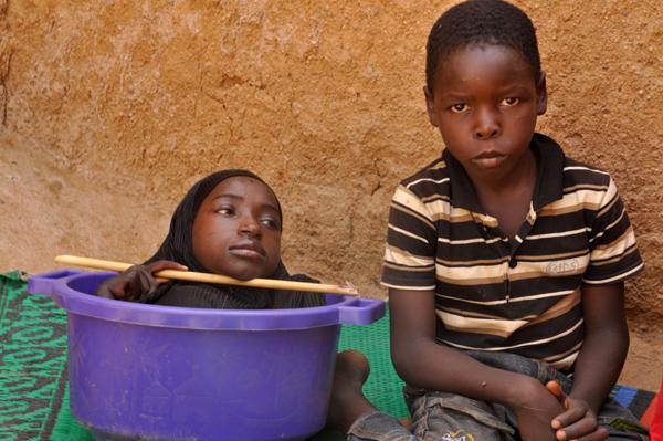 Fahad, cậu em trai 10 tuổi của Rahma, là người chăm sóc chính cho chị. Ảnh;
