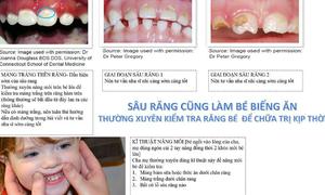 Những bất thường trên răng bé cha mẹ cần phát hiện sớm