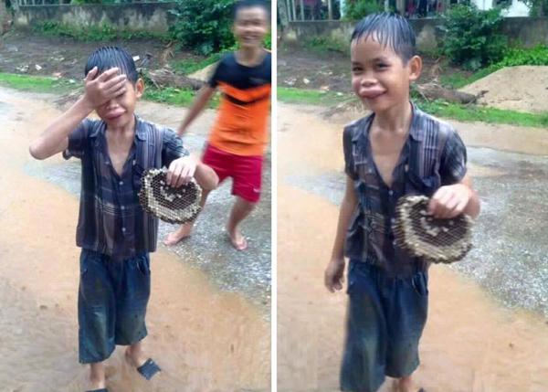 Bức ảnh cậu bé lấy tổ ong không may bị đốt sưng vù môi khiến người xem bật cười nhớ về thời thơ ấu nhiều trò nghịch ngợm.