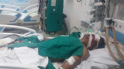 Bệnh nhân Nguyễn Văn K. bị hoại tử chân tay do ăn phải lợn ốm.