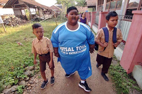 Arya Permana hồi tháng 6 xuất hiện trên hàng loạt mặt báo khi được xem là bé trai béo nhất thế giới khi nặng tới 192 kg dù chỉ mới 10 tuổi. Thân hình to lớn, nặng nề khiến Arya suốt ngày chỉ nằm, không thể đi lại, nếu ngồi hay chơi đùa thì cũng chỉ được vài phút.