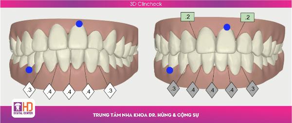 co-hoi-nieng-rang-trong-suot-invisalign-khong-the-bo-lo-2