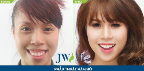 phau-thuat-hai-ham-chinh-ho-mom-toan-dien-tai-jw-6