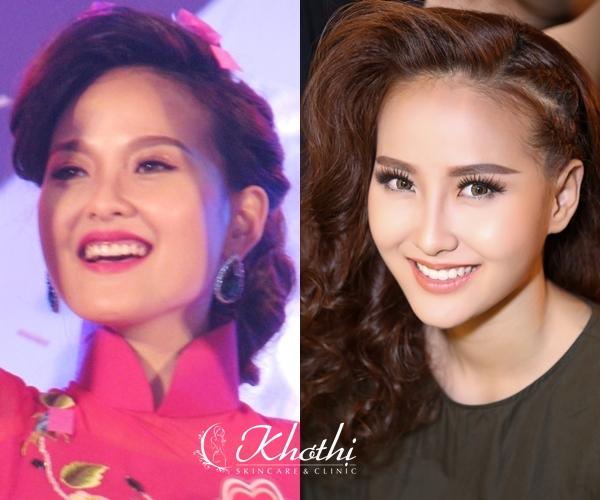bi-quyet-so-huu-mat-v-line-nhu-khanh-ngan-the-face-2