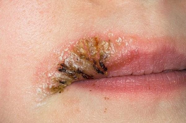 Tương tự, xăm môi cũng có thể để lại sẹo nguy hiểm nếu kỹ thuật viên tay nghề kém.