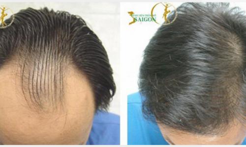 Cấy tóc tự thân bằng công nghệ FUE tại Bệnh viện Thẩm mỹ Sài Gòn