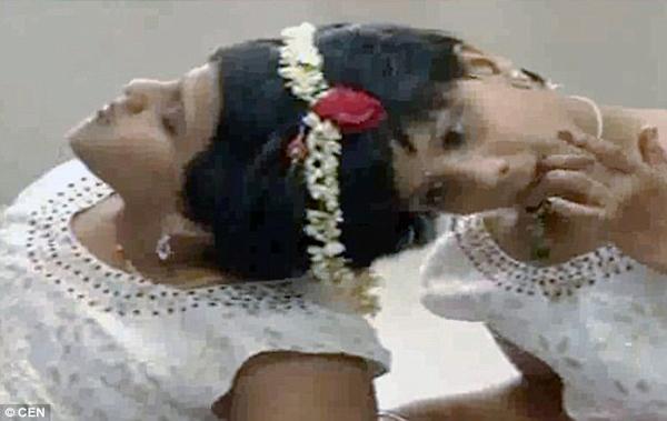 Veena và Vani. Ảnh: CEN