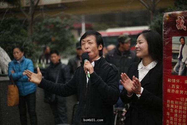 chuyen-tinh-cua-chang-trai-co-khuon-mat-di-dang-va-co-gai-xinh-dep-1
