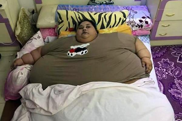 Iman Ahmad Abdulati với thân hình to lớn hiện tại. Ảnh: CEN