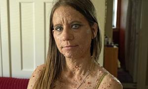Người phụ nữ có gần 6.000 khối u thịt khắp cơ thể