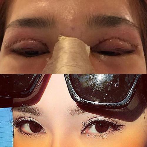 Chi phí cho phẫu thuật cắt mí mắt là