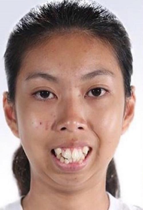 Jitraporn sinh ra trong một gia đình nghèo khó tại Bangkok, Thái Lan.