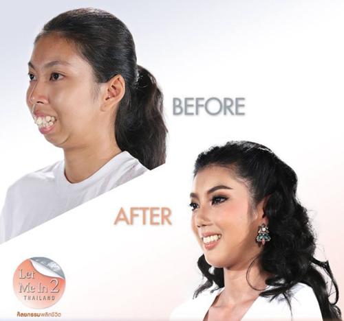Phẫu thuật chỉnh hàm và làm lại răng.