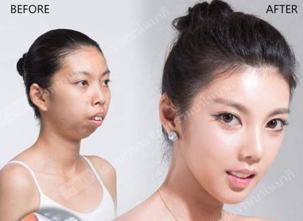 Khuôn mặt của Jitraporn thay đổi toàn bộ