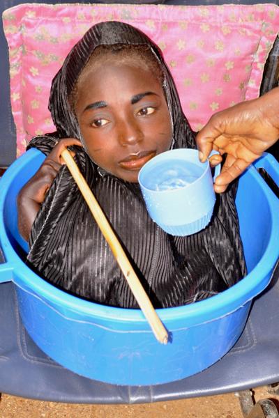 co-gai-nigeria-song-trong-chau-nhua-da-qua-doi