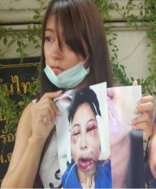 Người mẫu Thái Lan công khai khuôn mặt biến dạng sau phẫu thuật thẩm mỹ để cảnh báo những cô gái trẻ suy nghĩ kỹ trước khi quyết định đụng dao kéo.